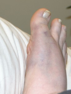 My brusied and swollen foot